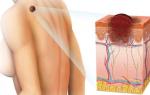 Что такое меланома кожи