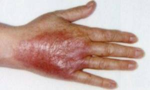 Лечение некроза кожи